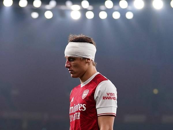 Tin Arsenal 2/12: David Luiz không thể thi đấu trước Rapid Vienna